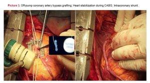 Coronary artery bypass grafting hemodynamics and